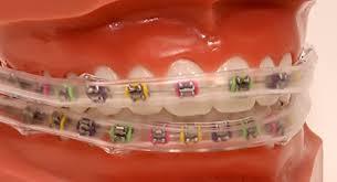 Ống bảo vệ môi má